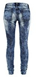 Dressation donne blu Destroy Ripped Distressed skinny jeans pantaloni